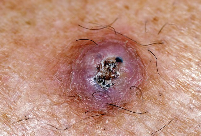 squamous cell carcinoma with central hyperkeratosis picture image, Human body