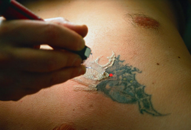 Picture of Tattoo with Q-Switched Laser Treatment