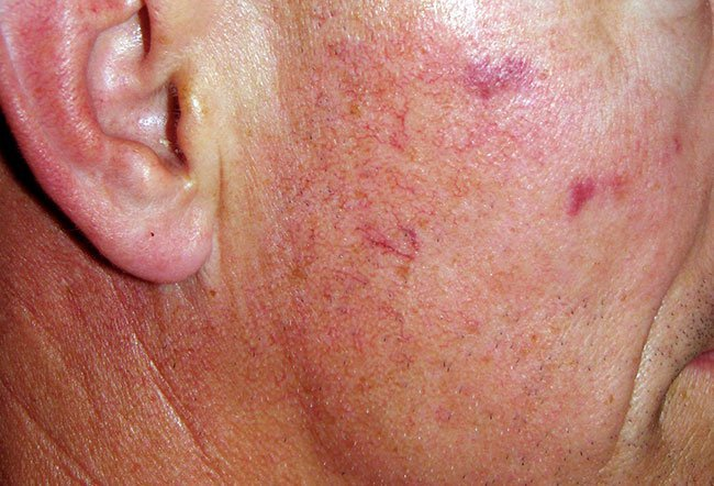 Picture of Telangiectasias after Treatment