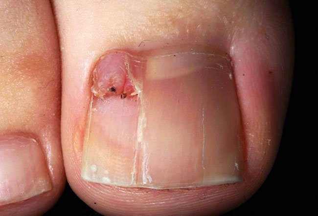 Picture of Tuberous Sclerosis (Periungual Fibroma)