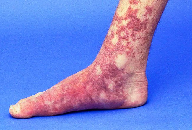 Picture of Vascular Malformations on Foot