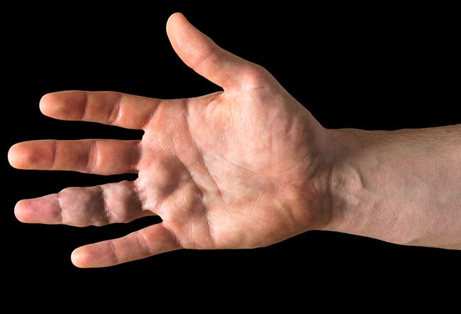 Picture of Vascular Malformations on Hand  