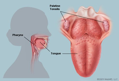 Picture of Tonsils