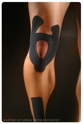How does Kinesio Tape work?