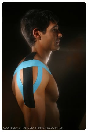 Photo of Kinesio Tape