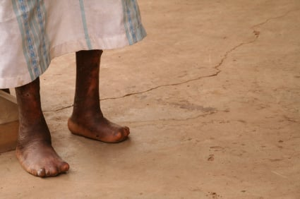 Picture of a person with leprosy (Hansen's disease)