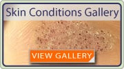 Skin Conditions Gallery