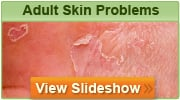 Adult Skin Problems Slideshow
