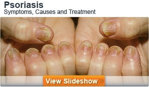 'Symptom Checker: Pinpoint Your Pain - MedicineNet' from the web at 'http://images.medicinenet.com/images/module/featured-slideshow-psoriasis1.jpg'