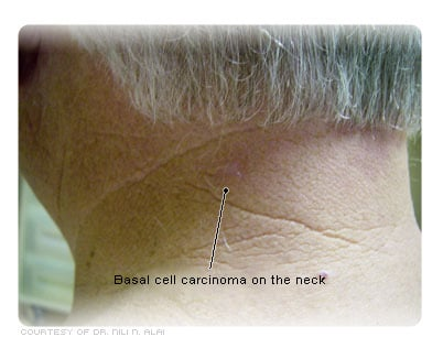 Basal cell carcinoma on the neck