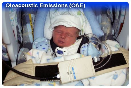 Otoacoustic Emissions (OAE) Photo - Hearing Loss in Children