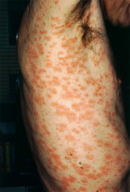 Picture of pityriasis rosea on the torso