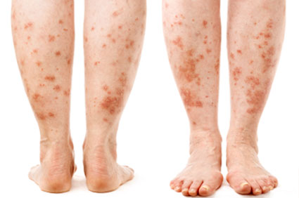 Picture of psoriasis on the legs