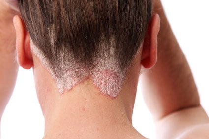 Picture of scalp psoriasis