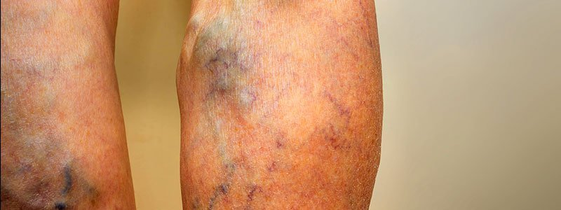 A woman's knees.