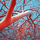 Deep Vein Thrombosis (DVT) and Pulmonary Embolism (PE) Quiz