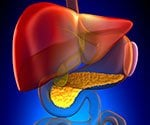 Take the Liver Disease Quiz