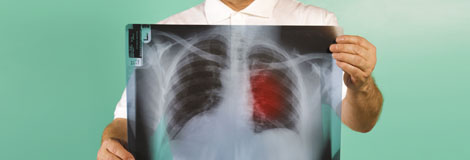 Take the Lung Cancer Quiz!
