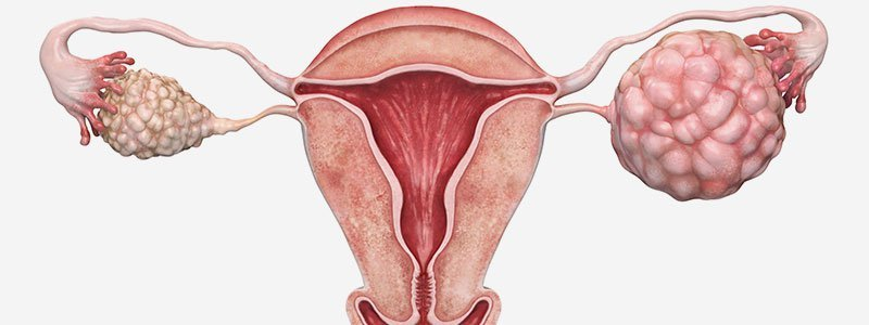 Illustration of ovarian cyst.