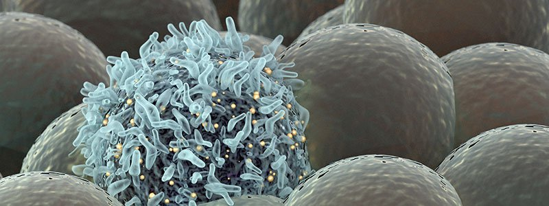 An illustration of skin cancer cells.