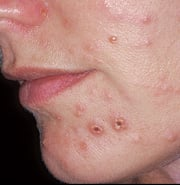 Pictures of Skin Disorders and Problems – Image Gallery