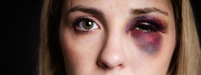A woman with stitches and a black eye.