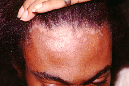 Picture of seborrheic dermatitis along the hairline