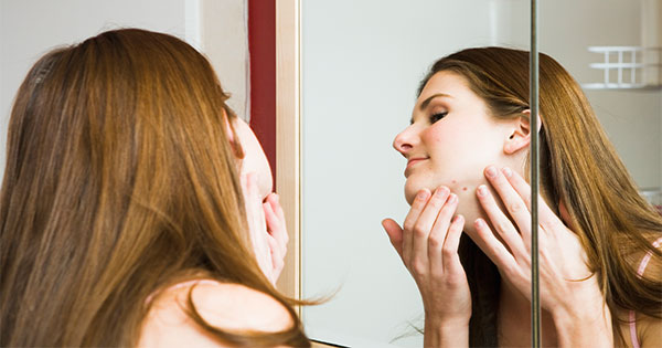 Acne Treatment, Scar Removal & Home Remedies for Pimples