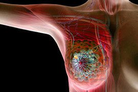 'Breast Cancer Diagnosis and Treatment' from the web at 'http://images.medicinenet.com/images/slider_wheel_promo/breast-cancer.jpg'