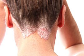 'Psoriasis Types, Images, Treatments' from the web at 'http://images.medicinenet.com/images/slider_wheel_promo/psoriasis-causes-symptoms-treatments.jpg'