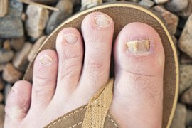 'Image Collection - Picture of Fungal Nail Infection' from the web at 'http://images.medicinenet.com/images/slider_wheel_promo/toenail-fungus.jpg'