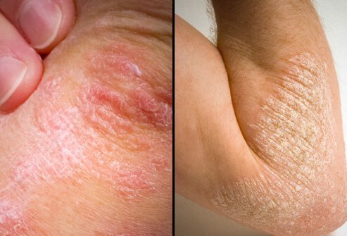 Psoriasis mainly affects the knees, elbows, and scalp 3