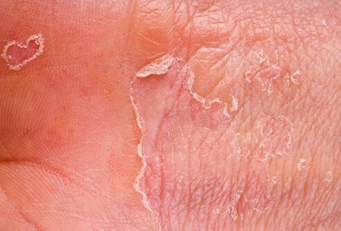 bubbly skin - Symptoms, Treatments and Resources for ...