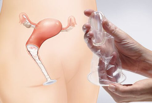 Have you used a female condom? What is your opinion of this birth control method?