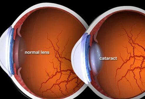 Photo of cataract illustration.