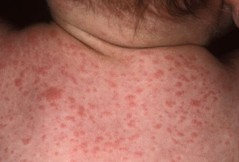 Facial rashes on adults
