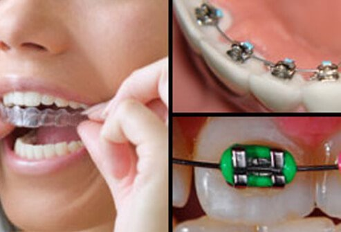 Picture of Types of Braces