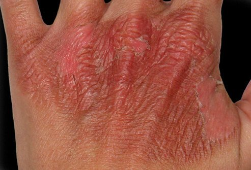 Damaged skin of a burned hand.