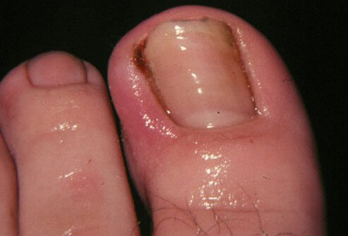 Nail Grow Into The Skin