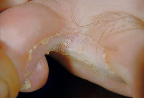 Picture of Athlete's Foot (2 of 2)