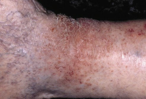 I have a rash on my lower legs just above ankles-no pain ...