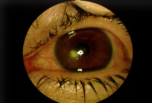 Like these diseases, herpes can cause pitting and ulceration of the cornea 2