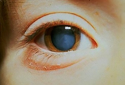 Cataracts Picture Image On Medicinenet Com