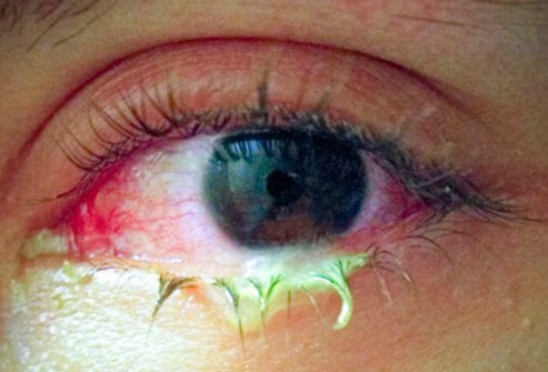 bacterial conjunctivitis (pink eye) picture image on medicinenet, Skeleton