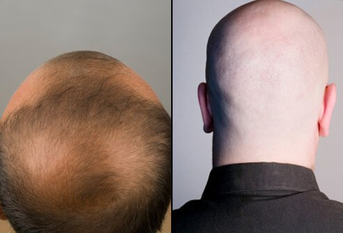 Health Data Hair Loss Causes Treatments and Solutions