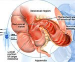 View the Crohn's Disease Slideshow Pictures