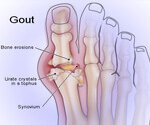 View the Gout Slideshow
