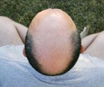 View Hair Loss Slideshow Pictures