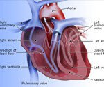 View Heart Disease (Coronary Artery Disease) Slideshow Pictures