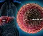 View Hepatitis Slideshow Pictures